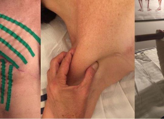 La riabilitazione oncologica